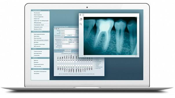 CRM  для стоматології